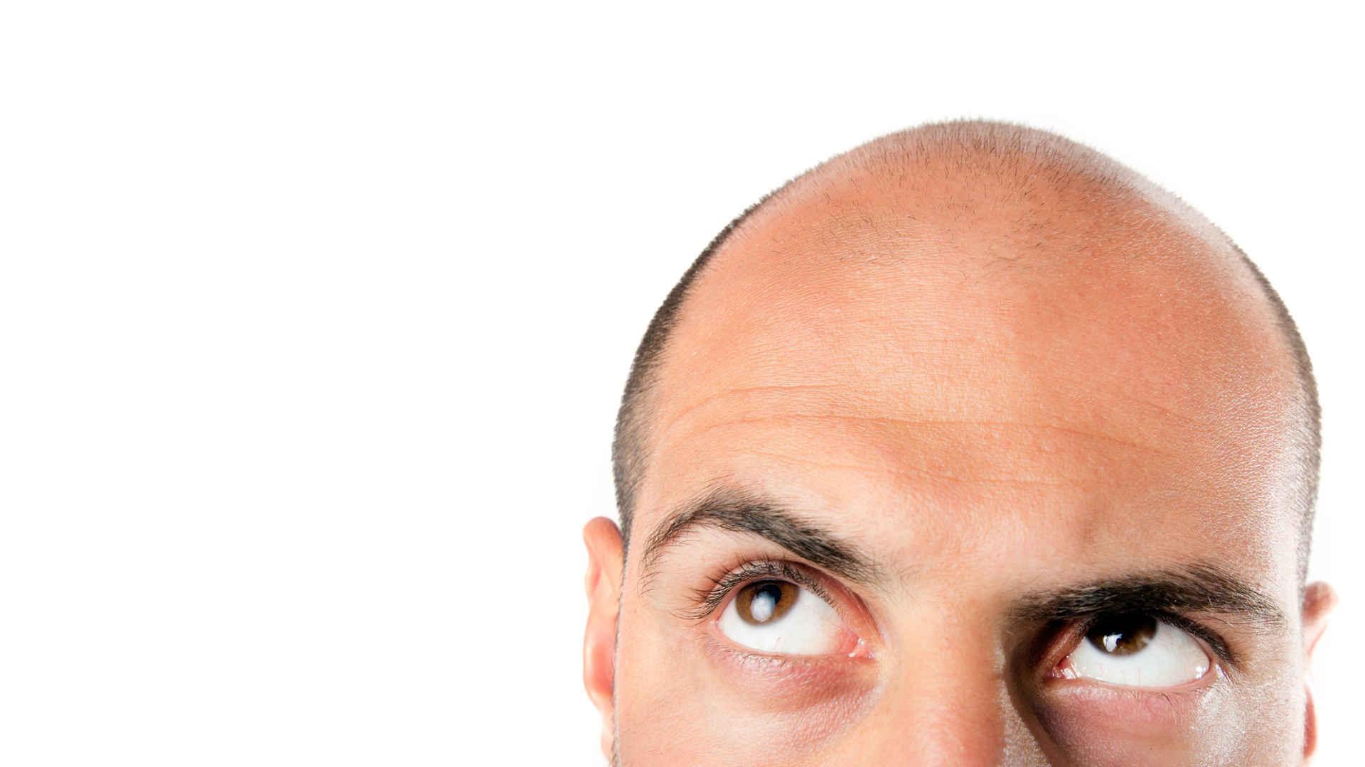 Ratgeber Haartransplantation