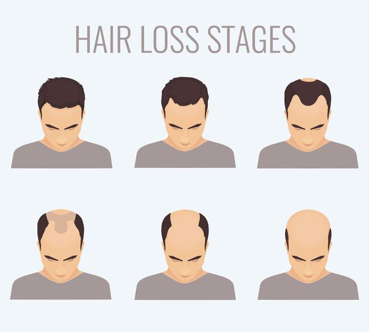 Ursachen für Haarausfall | Haarausfallstadien bei Männern