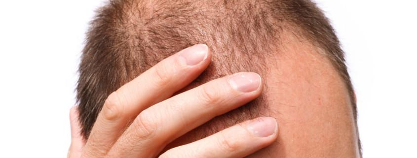 Schütteres Haar an Stirn und Oberkopf