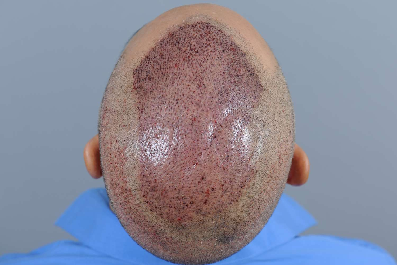 Krusten nach Haartransplantation entfernen