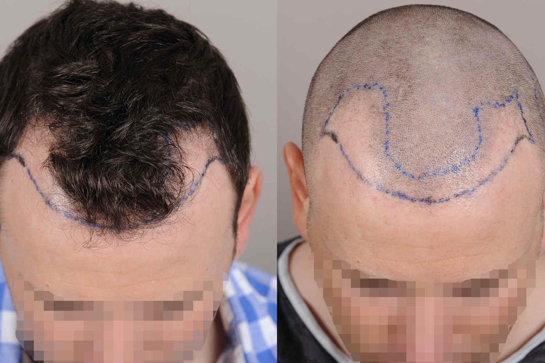 Geheimratsecken auffüllen - Vorbereitung zur Haar-OP