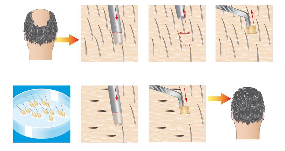 Haartransplantation mit der FUE-Methode - Der Prozess