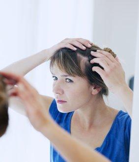 Kreisrunder Haarausfall bei Frauen