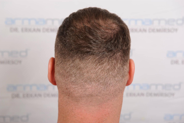 Spenderbereich für Haartransplantation