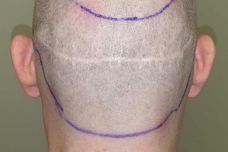 Narben am Hinterkopf nach Haartransplantation