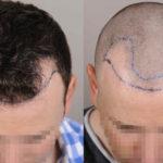 Haartransplantation Methoden