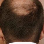 Haartransplantation Spenderbereich - durch sorgfältige Pflege regeneriert sich der Haarkranz schneller
