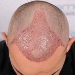 Schwellung nach Haartransplantation - ein natürlicher Prozess, der sich individuell beeinflussen lässt